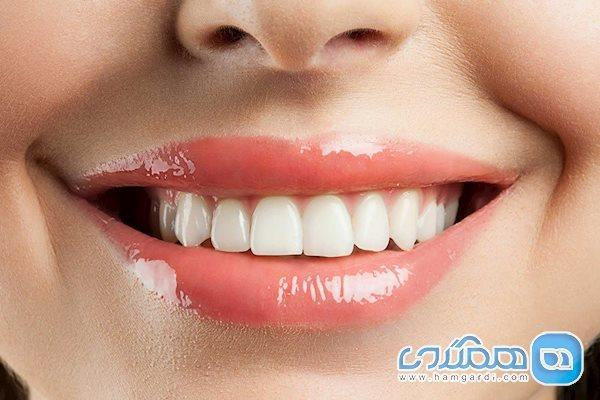 9 راهی که باعث می شوند ناخواسته دندان هایتان را لک کنید
